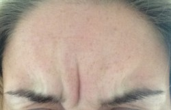 Botox - Frown 2 Days After