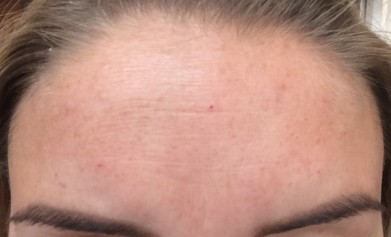 Botox - Immediately After