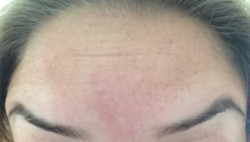 Botox - Raised 2 Days After